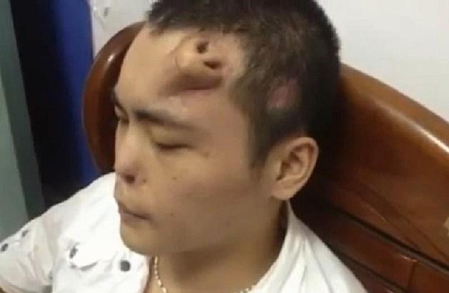 Chinese Grow Nose on Man's Forehead