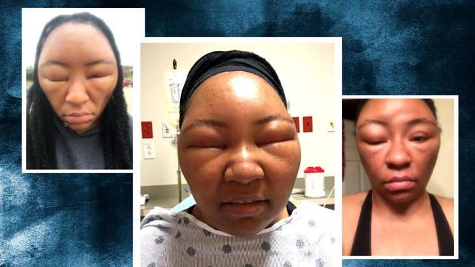 Texas Woman Has Allergic Reaction To Hair Dye